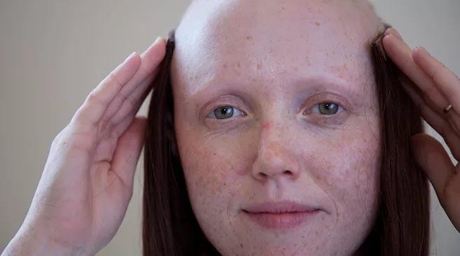 Выпадение волос от лекарств - Медицина и здоровье